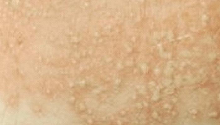 infecciones por levadura sintomas